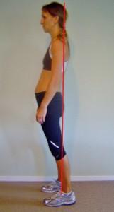 Sway-back-posture