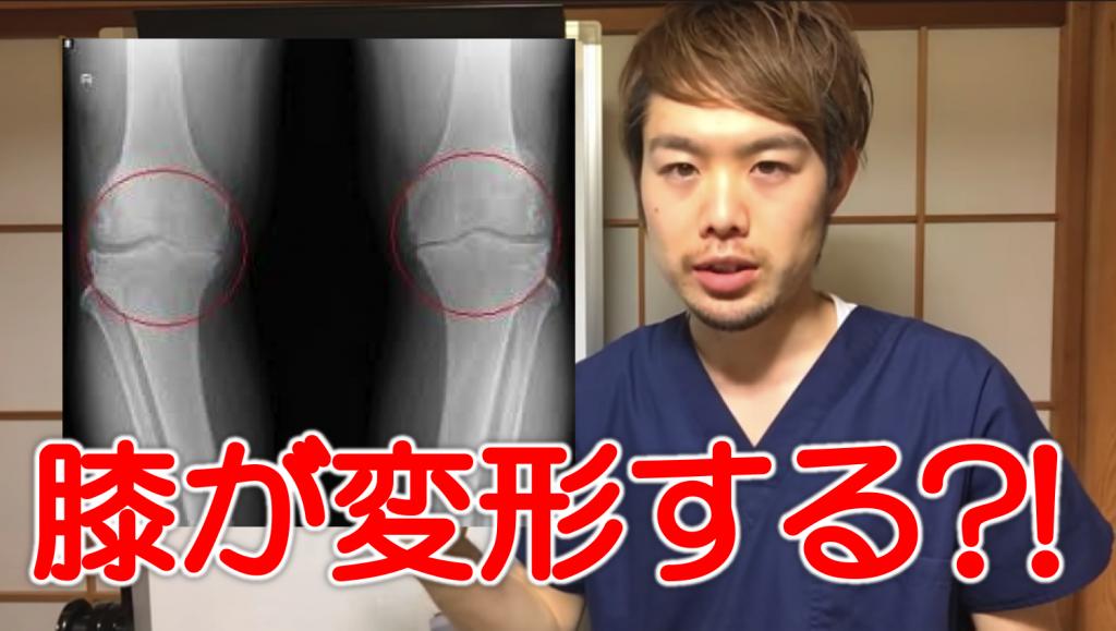 病院では教えてくれない変形性膝関節症が進む理由 上田市 整体